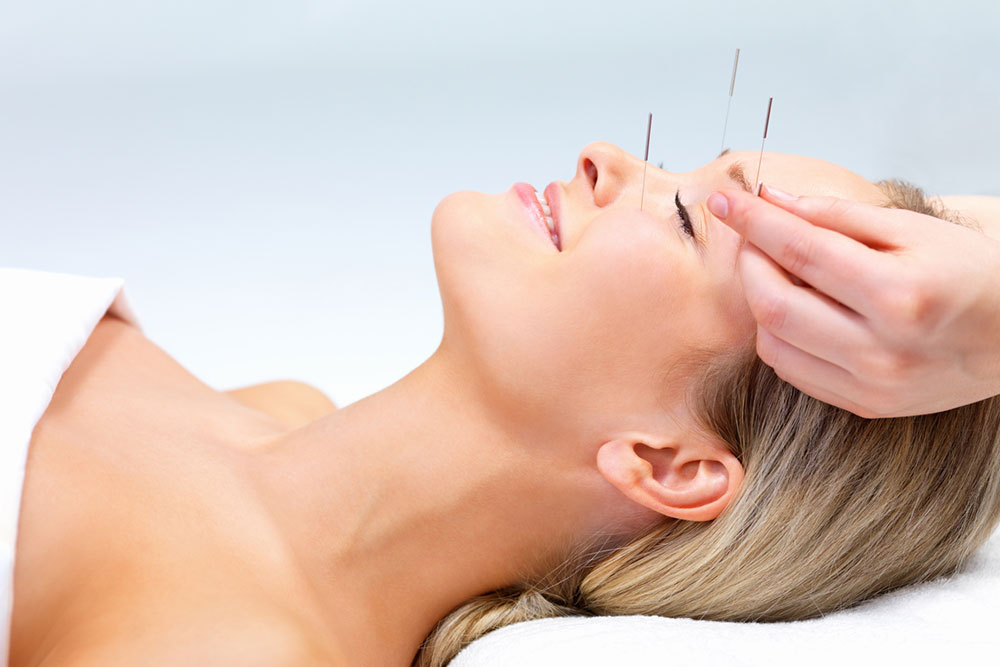 acupuncture-facelift